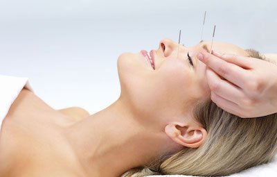 Acupuncture treatment session